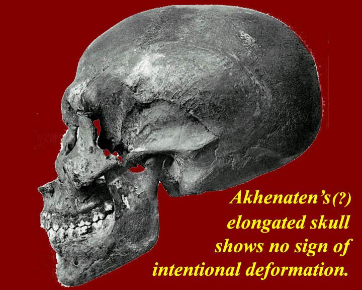 [Image: EGtkw05044AkhenatenSkull.jpg]